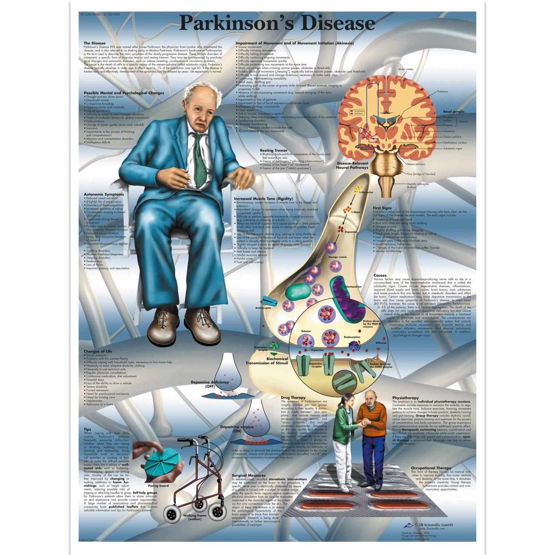 Pancarte murale plastifiée Parkinson's Disease - 50 x 67 cm