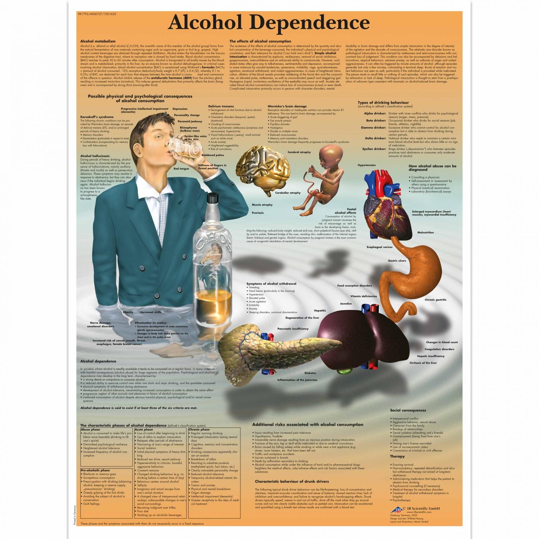 Pancarte murale plastifiée Alcohol Dependence - 50 x 67 cm