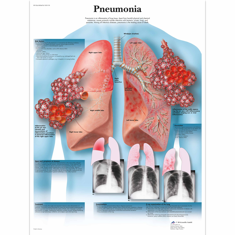 Pancarte murale plastifiée Pneumonia - 50 x 67 cm