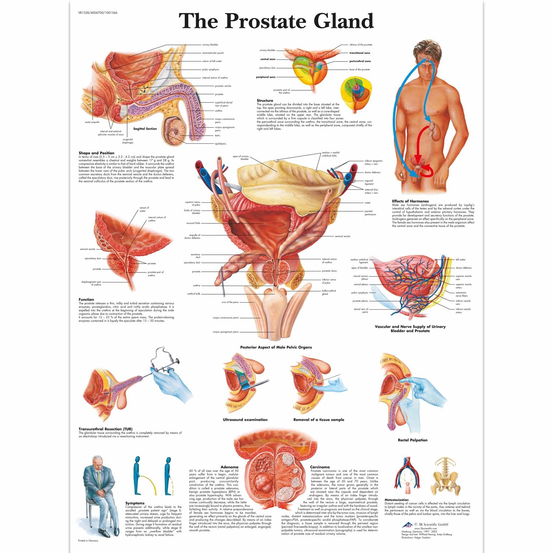 Pancarte murale plastifiée The Prostate Gland - 50 x 67 cm