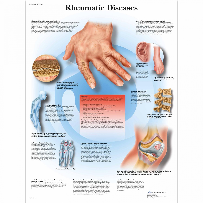 Pancarte murale plastifiée Rheumatic Diseases - 50 x 67 cm