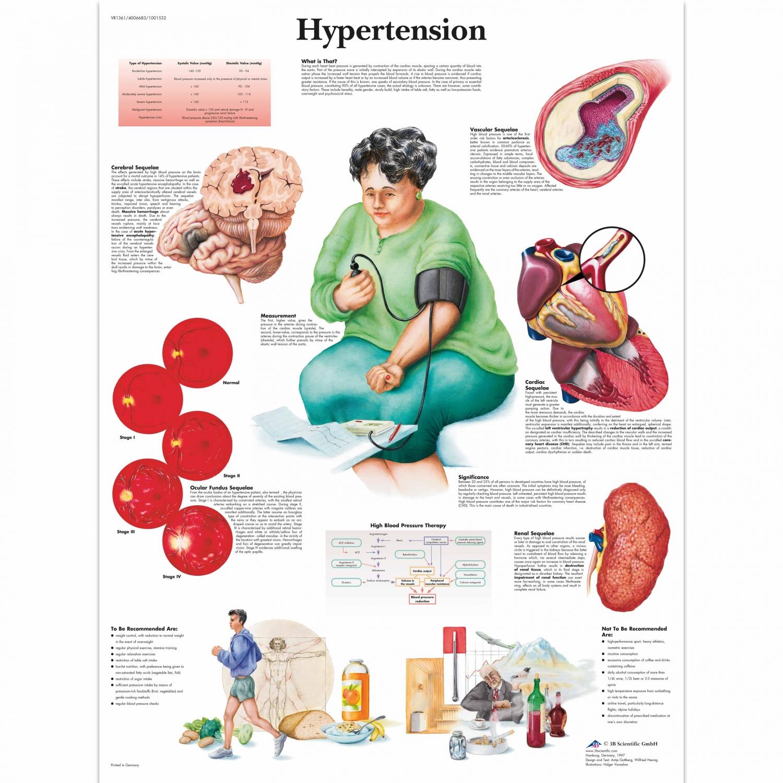 Wandplaat geplastificeerd Hypertension - 50 x 67 cm