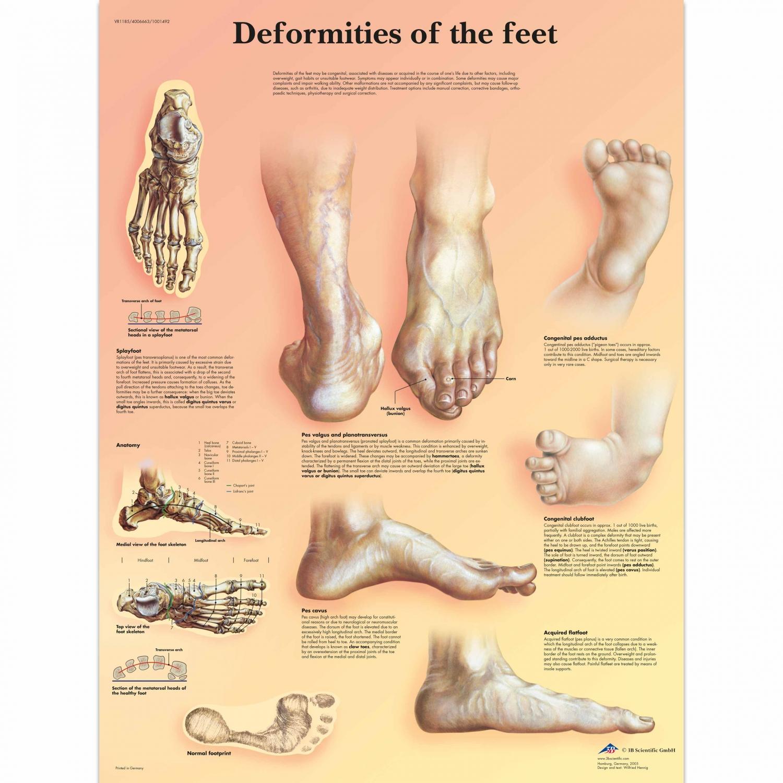 Wandplaat geplastificeerd Deformities of the Feet - 50 x 67 cm