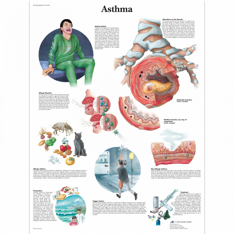 Wandplaat geplastificeerd Astma - 50 x 67 cm