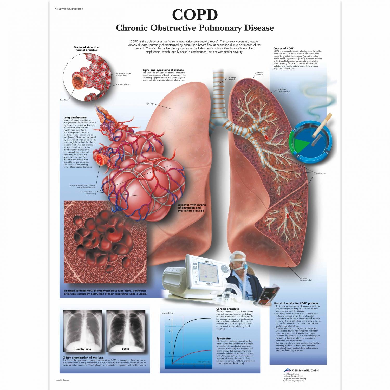 Wandplaat geplastificeerd COPD - 50 x 67 cm