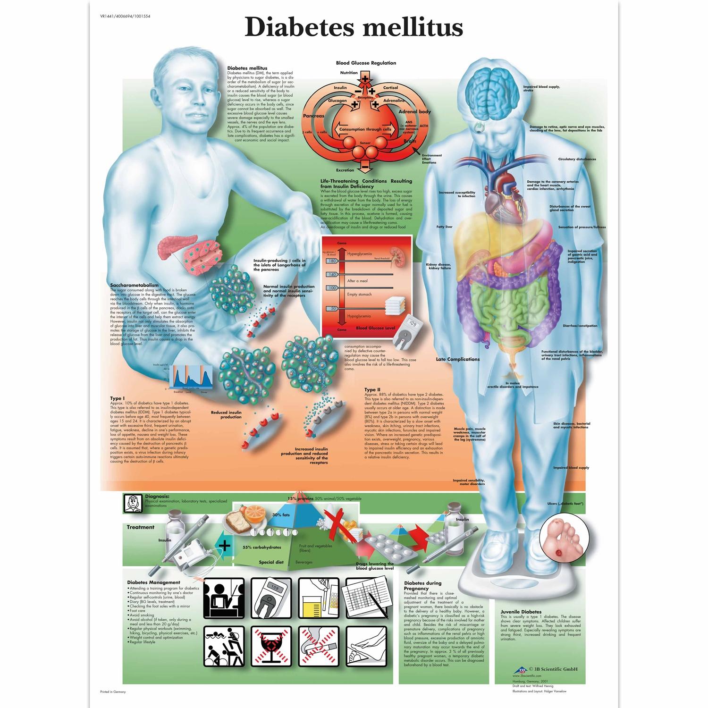 Wandplaat geplastificeerd Diabetesmellitus - 50 x 67 cm