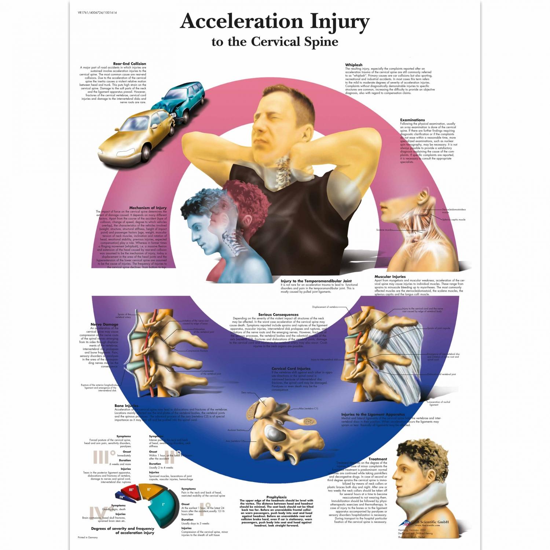 Wandplaat geplastificeerd Acceleration Injury Spine - 50 x 67 cm