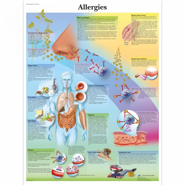 Wandplaat geplastificeerd Allergies - 50 x 67 cm